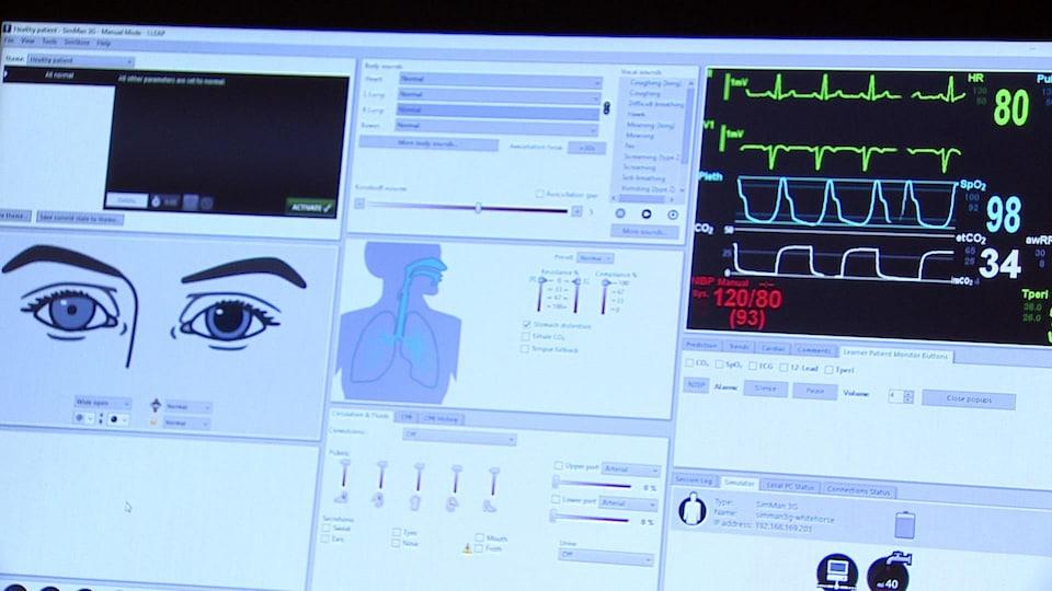 Écran d'ordinateur montrant différentes parties d'un corps humain.
