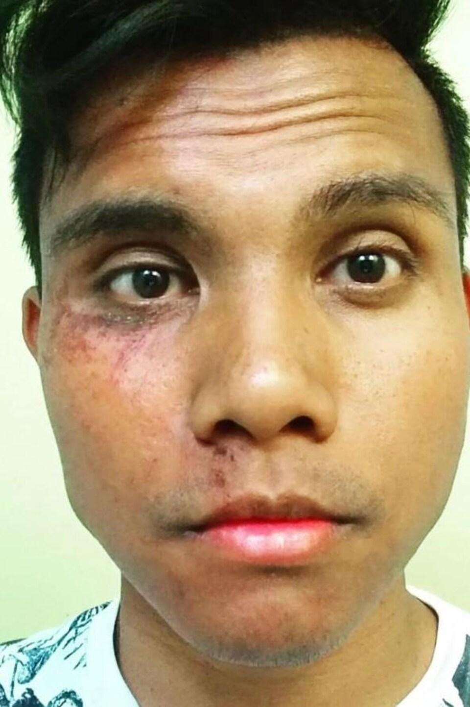 Un jeune homme avec des contusions et des coupure sur une moitié de son visage.