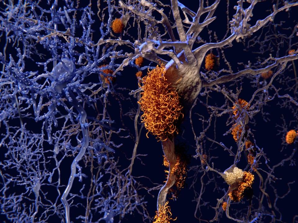 Illustration montrant des neurones présentant des plaques amyloïdes et des neurones sains (à gauche).