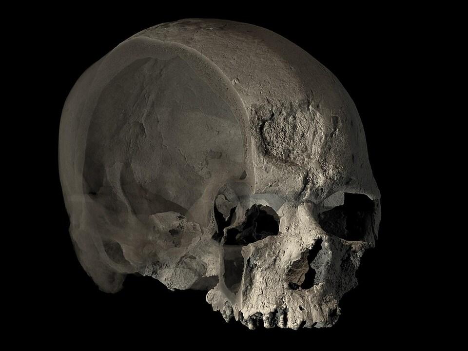 On voit le crâne coupé et une portion de l'intérieur.