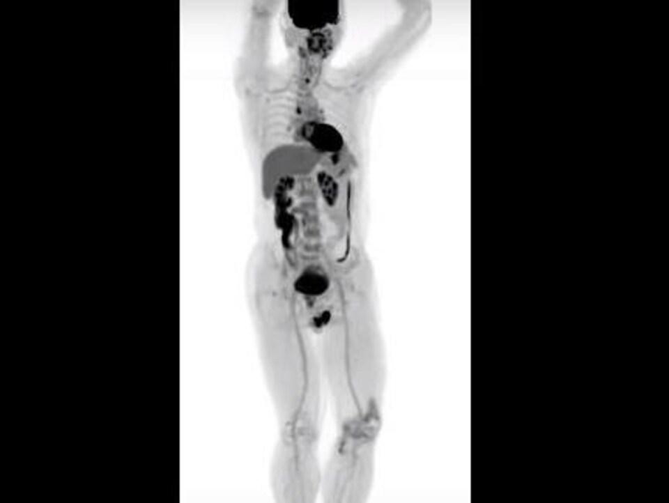 Le nouvel appareil capture le rayonnement beaucoup plus efficacement que les autres outils actuellement à la disposition des médecins.