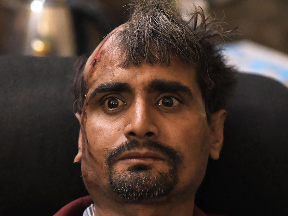 Un homme blessé à la tête a la moitié de la tête rasée. Il regarde fixement devant lui.