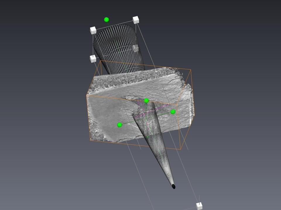 Un examen d'imagerie montrant un objet pointu qui perfore un os.