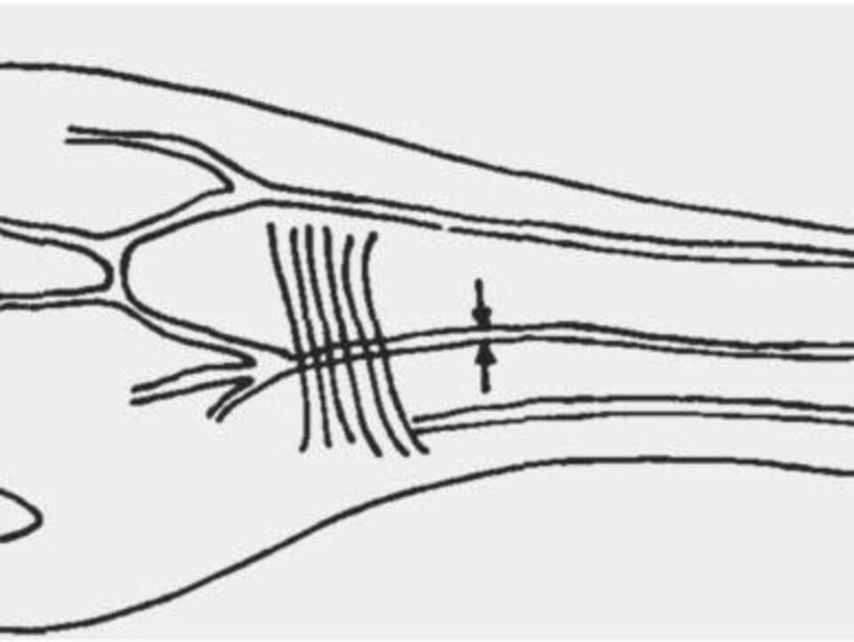 Croquis de l'artère médiane qui fournit le sang à l'avant-bras et à la main.