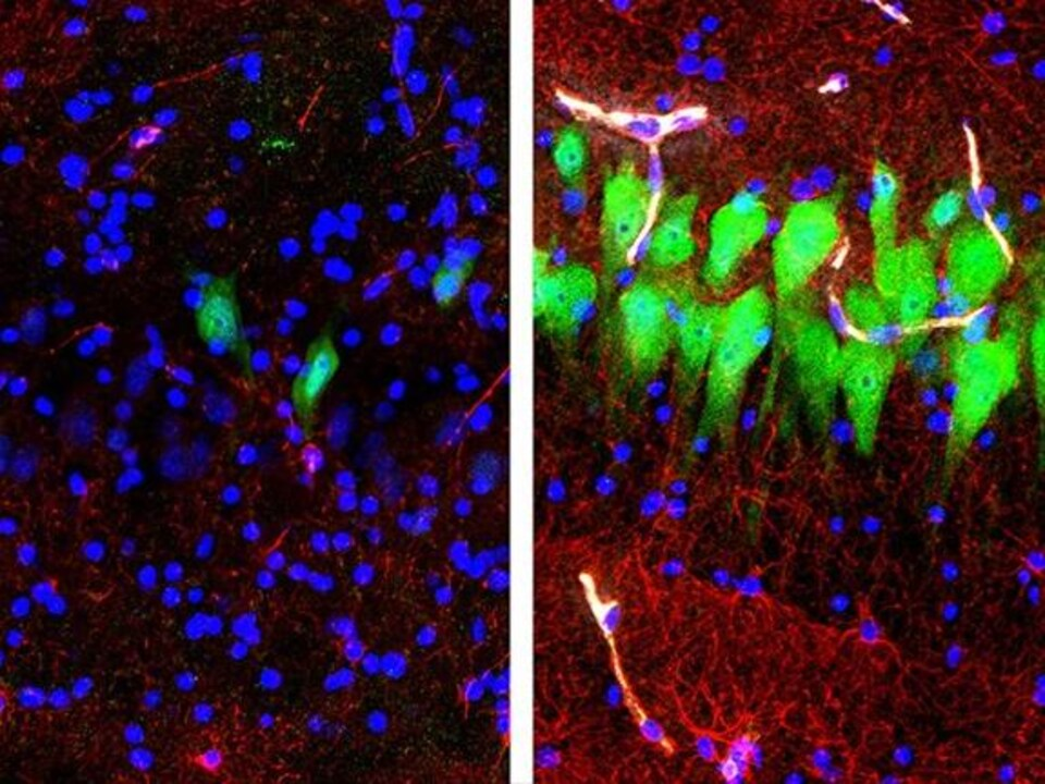 Images microscopiques.