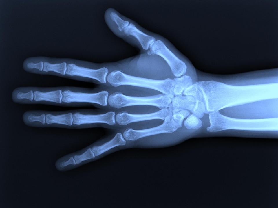 Les os de la main.