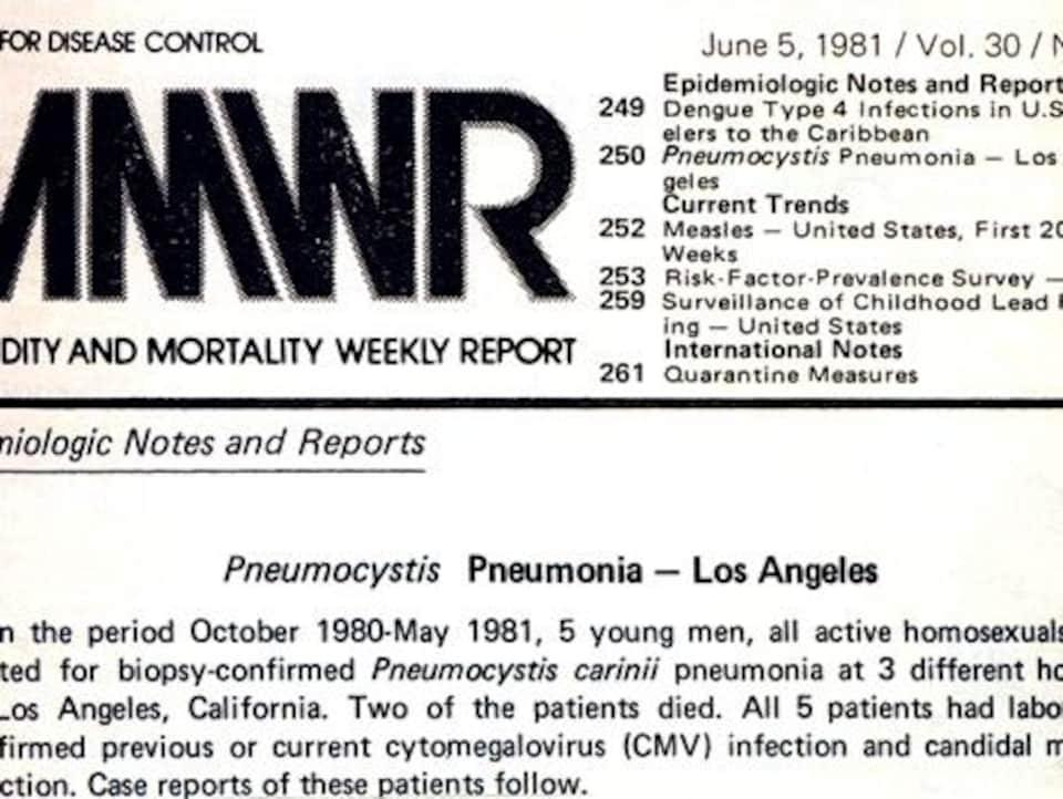 La première description du sida aux États-Unis.