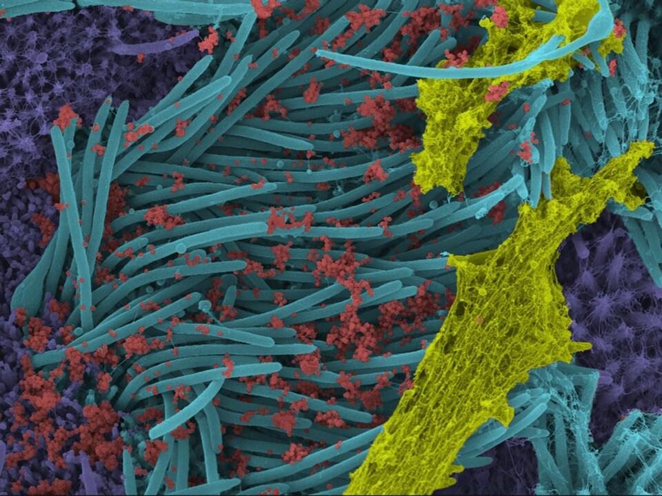 Image en couleur de microscopie électronique à balayage.