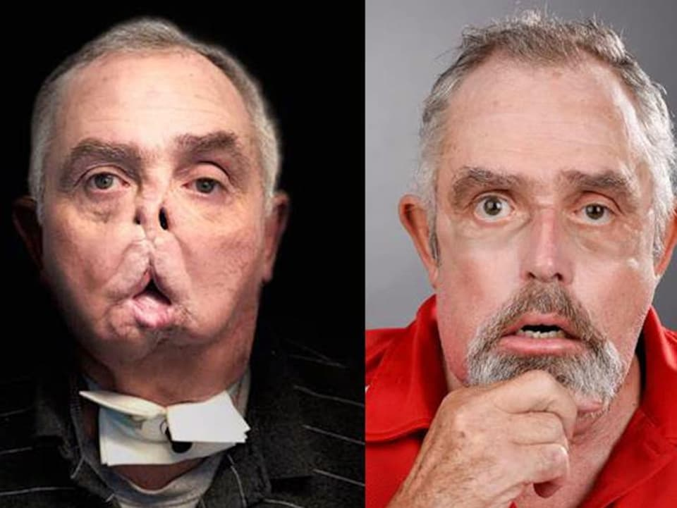 Images d'un homme avant et après une transplantation du visage.