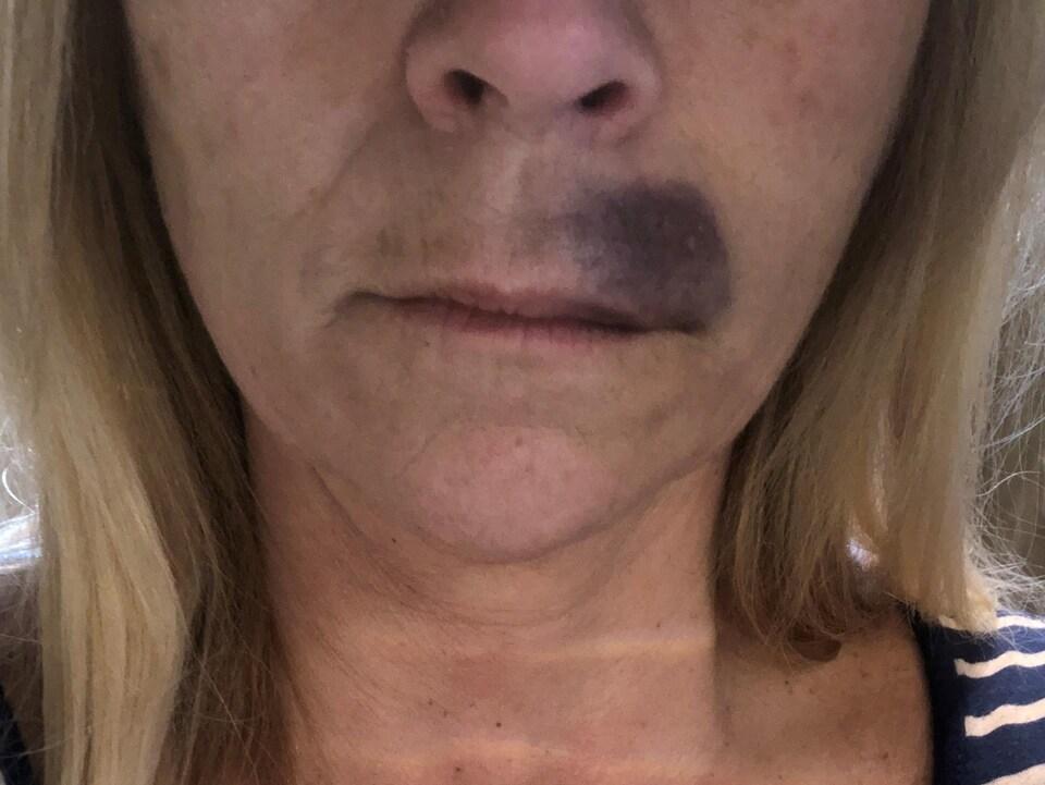 Hématome au-dessus de la lèvre supérieure.
