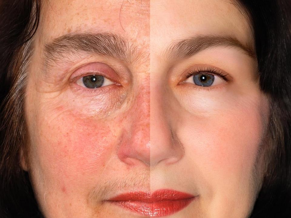 Illustration montrant le visage d'une même femme jeune et vieille.