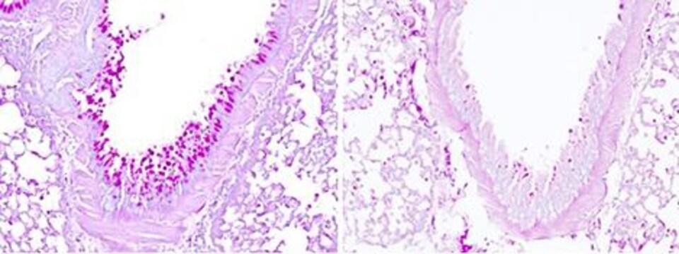 Production de mucus dans le poumon après inhalation d'un allergène.