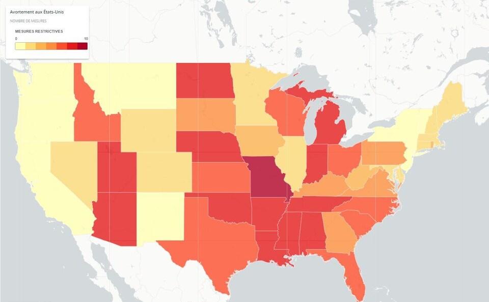 Les restrictions sur l'avortement par État américain.