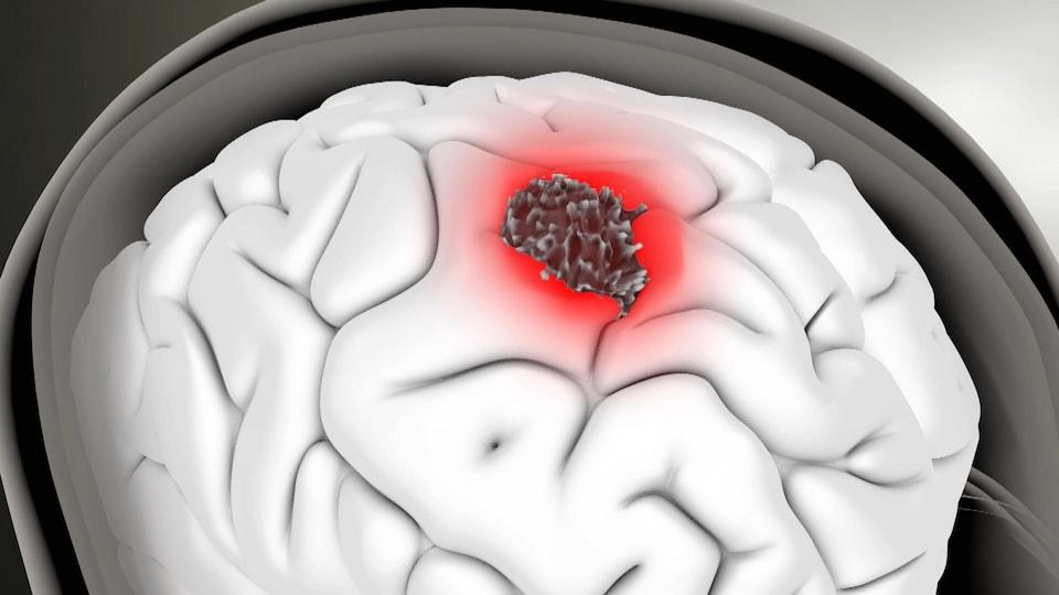 Une illustration d'une tumeur (en rouge) au centre d'un cerveau