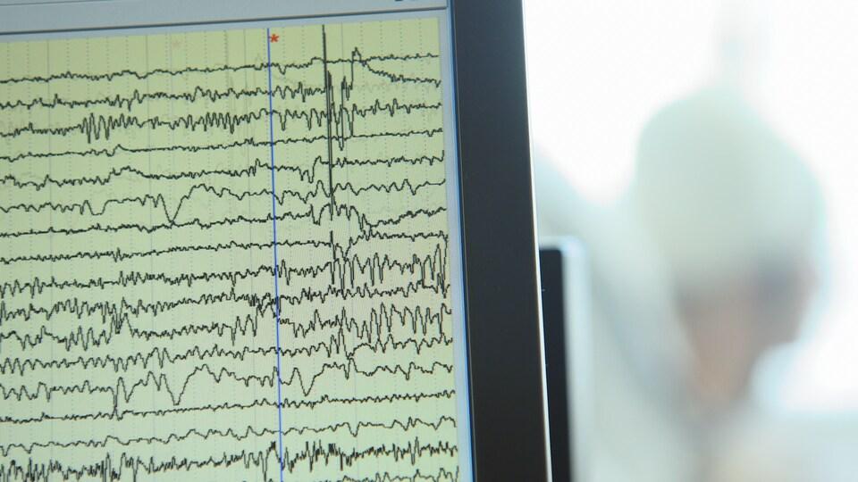 Électroencéphalogramme intracrânien