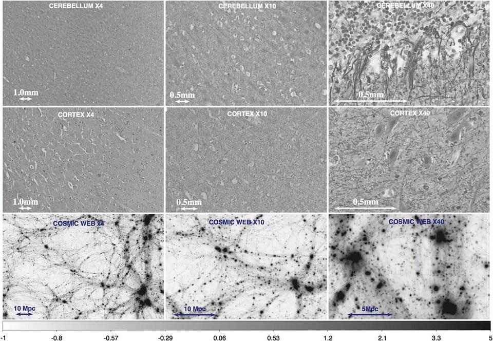 Exemple de contraste de densité pour des tranches du cervelet, du cortex cérébral et de la répartition de la matière noire dans la toile cosmique, pour différents niveaux de grossissement.