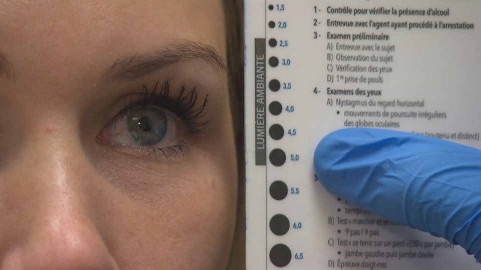 Un œil en gros plan, comparé à des pupilles de différentes tailles sur une charte.