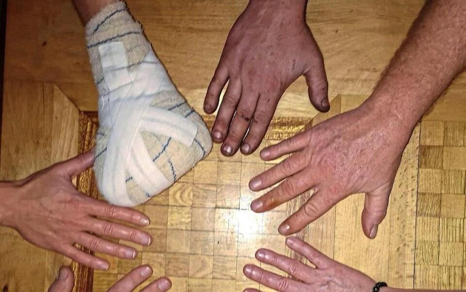 Des mains dont une recouverte d'un pansement.