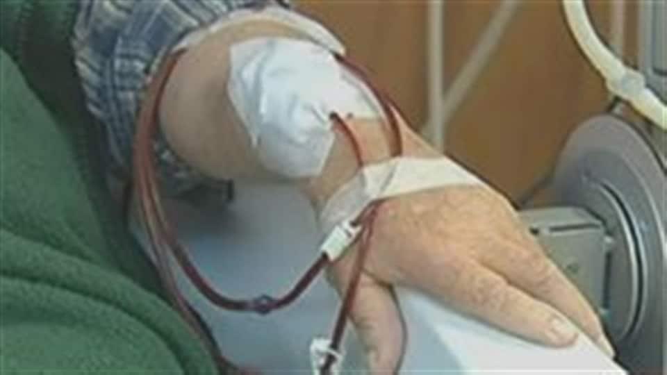 Bras d'une personne qui reçoit un traitement d'hémodialyse