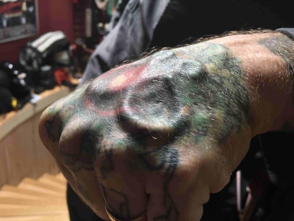 On voit son implant en gros plan couvert par un tatouage.