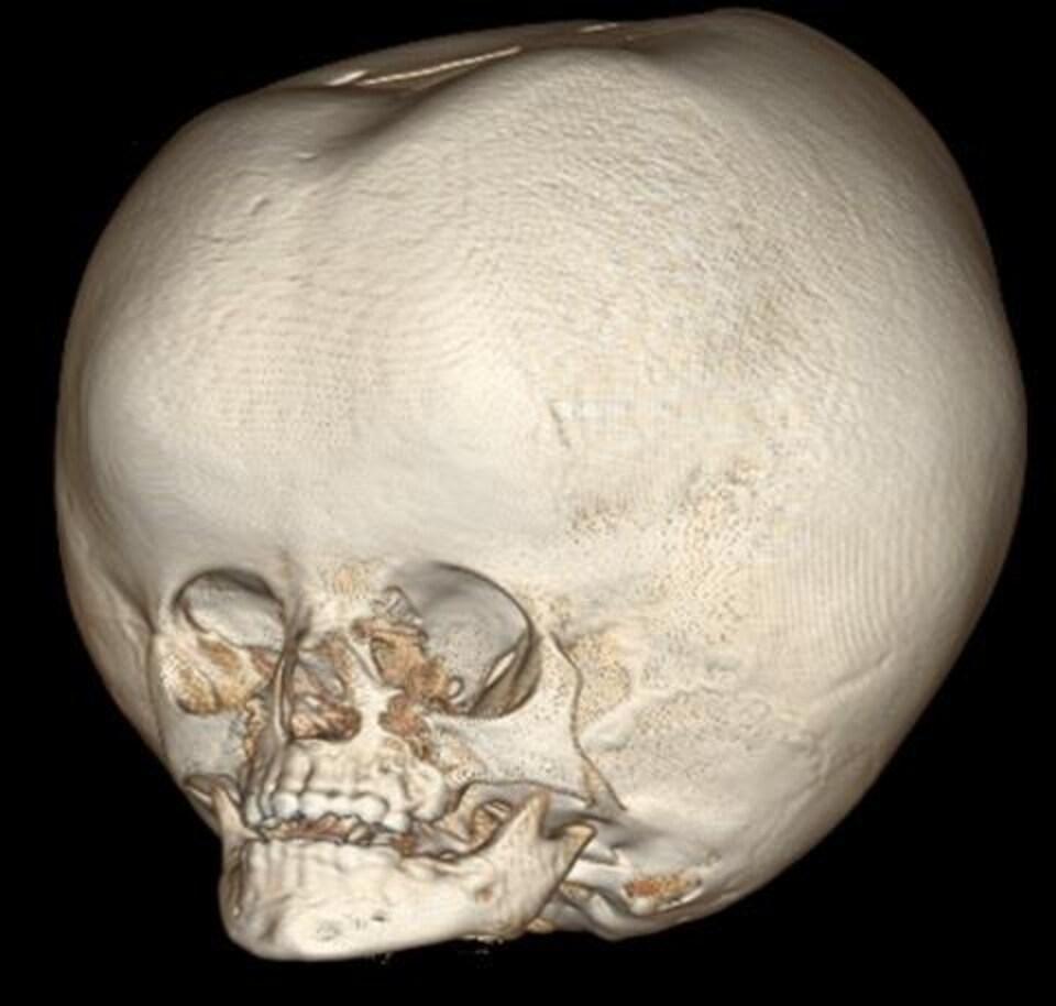 On voit un scan du crâne de l'enfant de deux ans. La boîte crânienne est beaucoup plus grande que la normale.