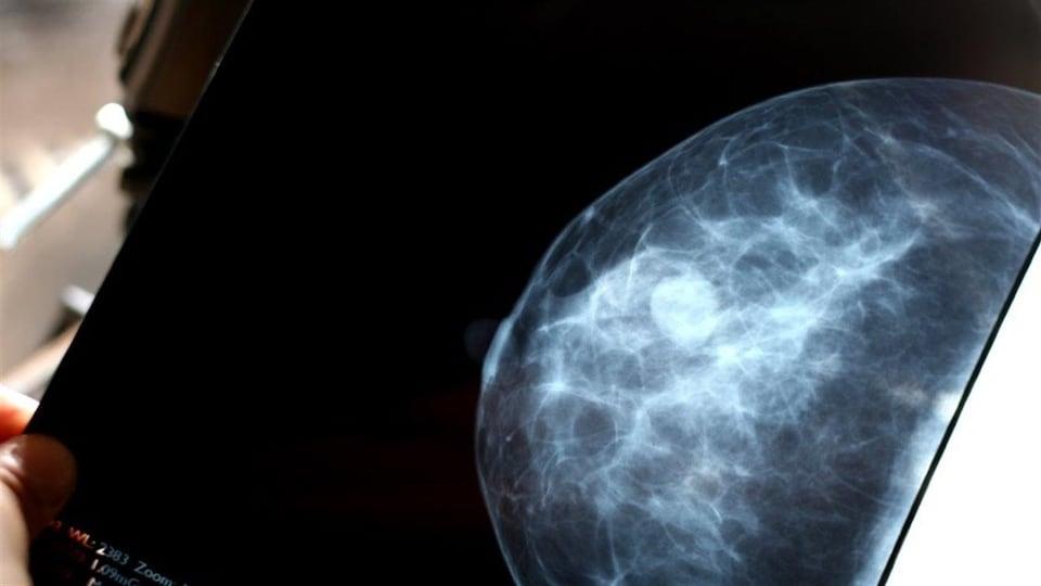 une mammographie.