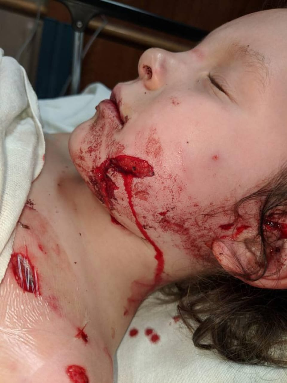 Des blessures graves sur le visage d'une enfant.
