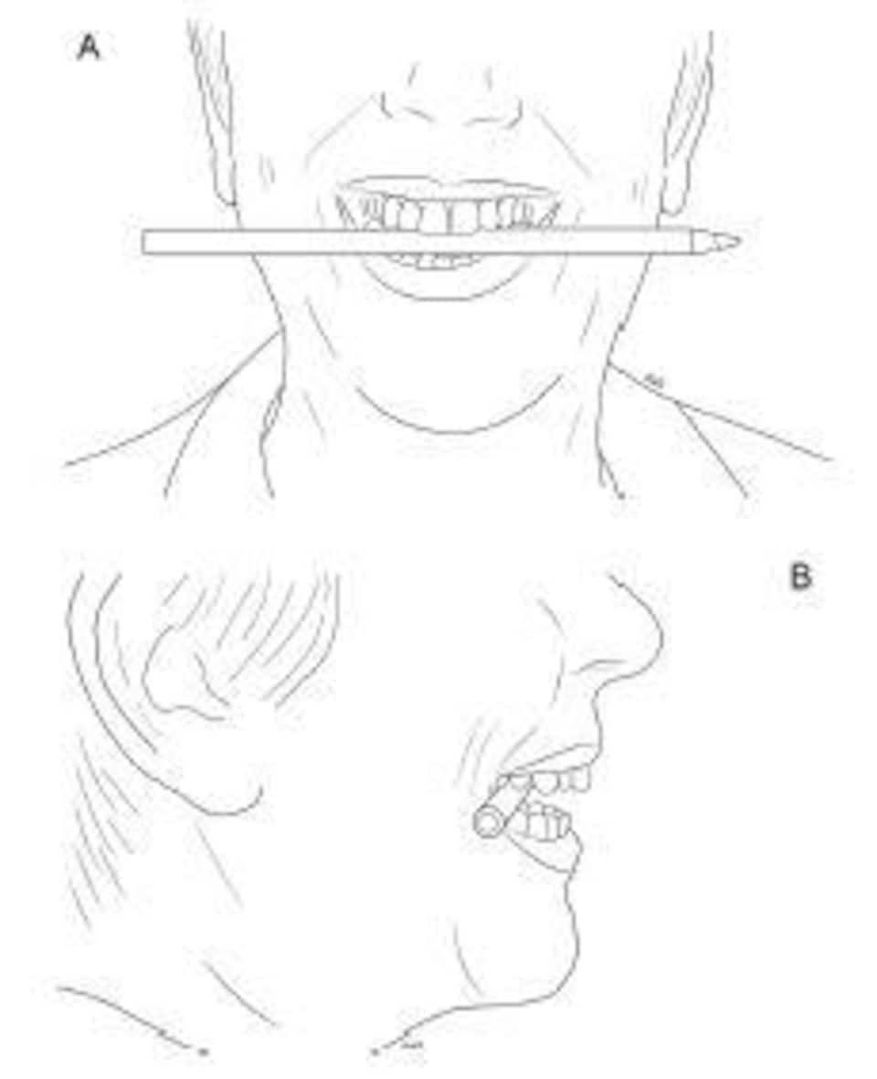 Illustration de la façon dont un stylo est tenu entre les dents pour induire un sourire caché.