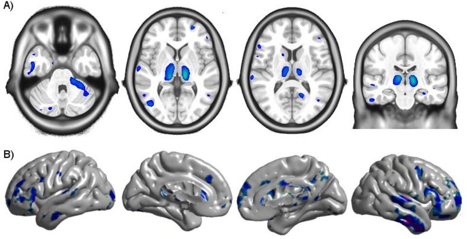 La rangée du haut montre une atrophie cérébrale et celle du bas, un amincissement du cortex, dans le cerveau d'un porteur du VIH.