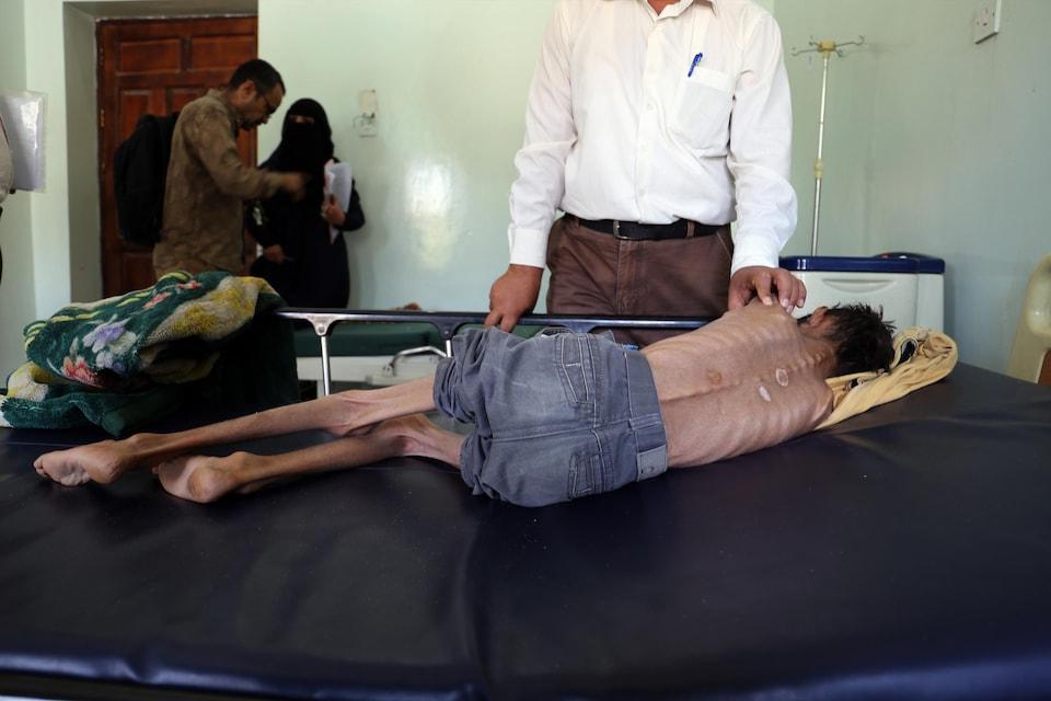Un garçon couché est couché sur un lit, de dos, et il est si maigre que sa colonne vertébrale est particulièrement en évidence.