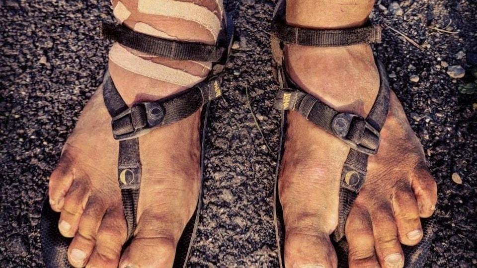 Gros plan des pieds couverts de bandages d'un homme en sandales