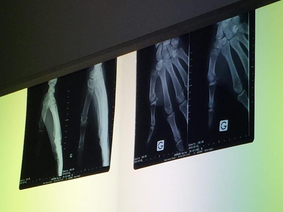 Radiographie d'une main fracturée.