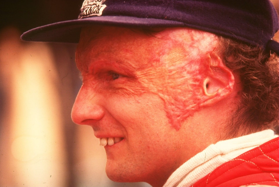 Le visage brûlé de l'Autrichien Niki Lauda lors de son retour au Grand Prix d'Italie en 1976.