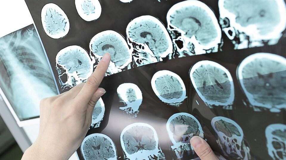 Un expert analyse les images d'un cerveau.