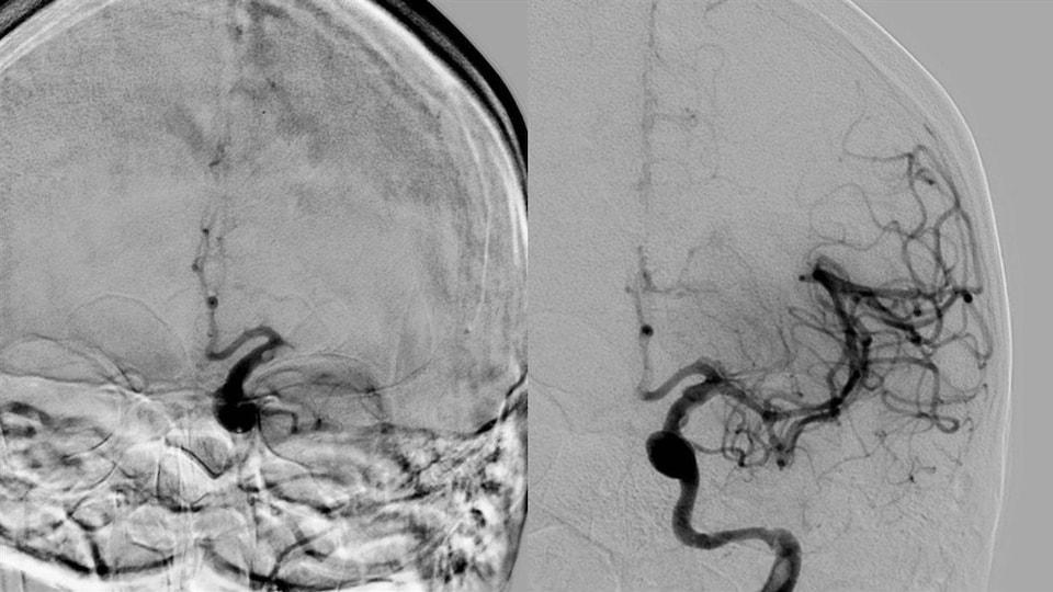Une image détaillée du cerveau.