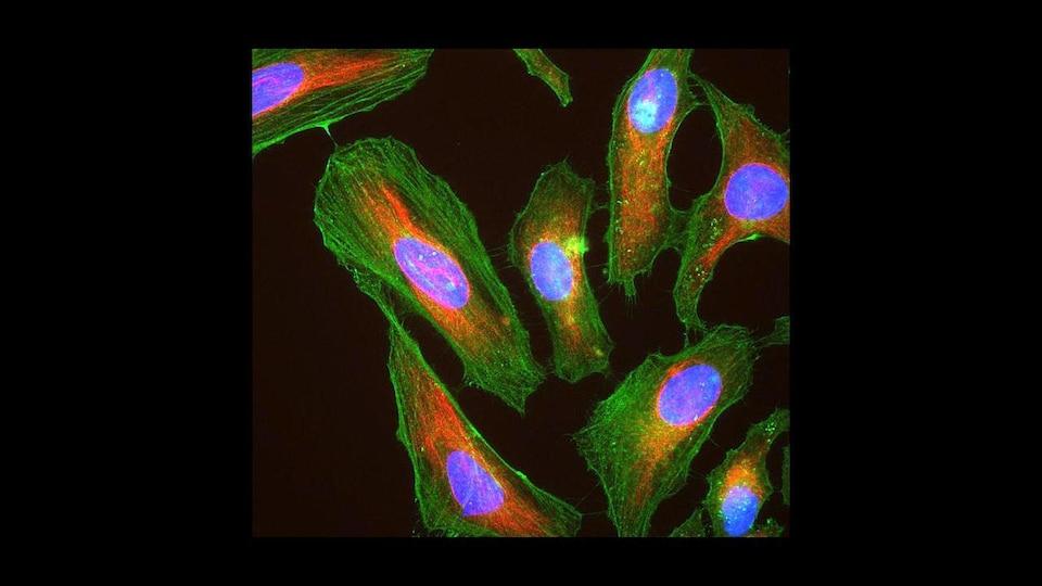 Les protéines cellulaires sont visibles par fluorescence ; l'actine en vert, la vimentine en rouge et l'ADN bleu