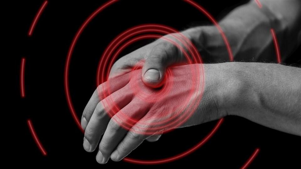 Un homme souffre d'arthrite