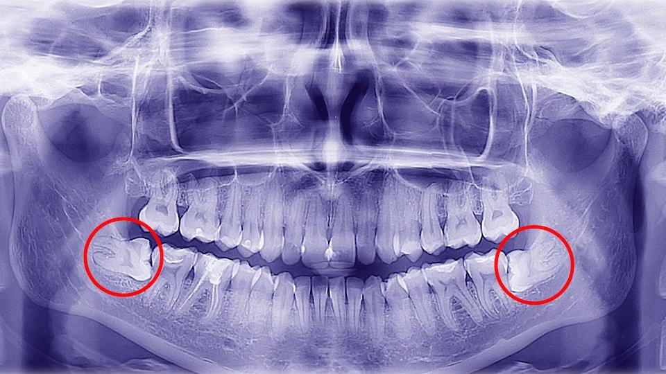 Radiographie des dents d'une femme dont les dents de sagesses sont mal placées.