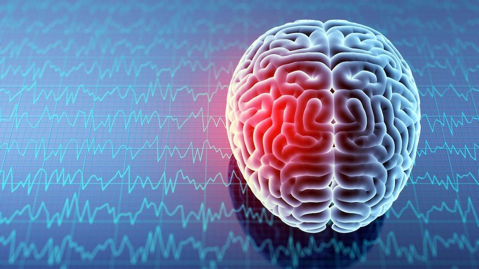 Une infographie où l'on voit un cerveau. À l'arrière, on voit de nombreuses lignes représentant l'activité cérébrale.