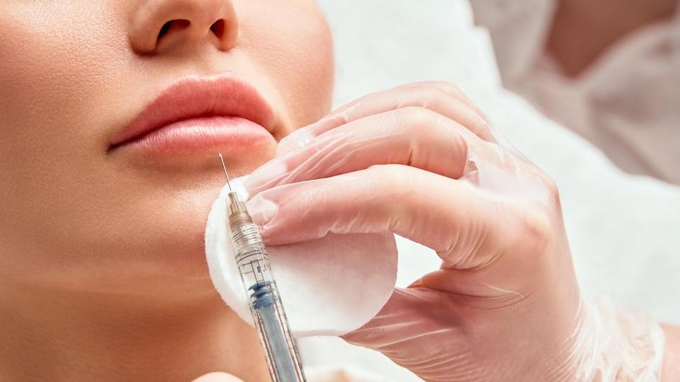 Une personne se fait injecter du Botox sur la lèvre inférieure de la bouche.