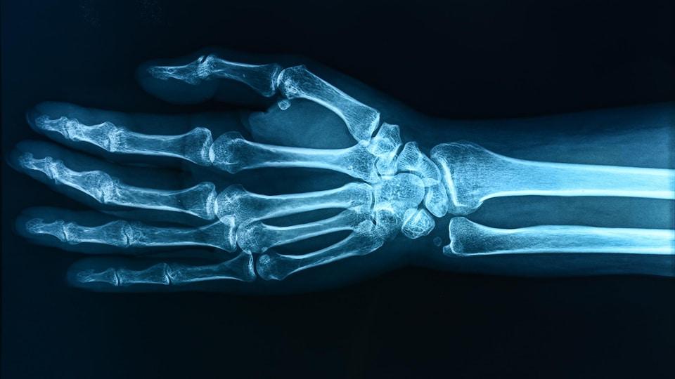 Une radiographie montre une main.