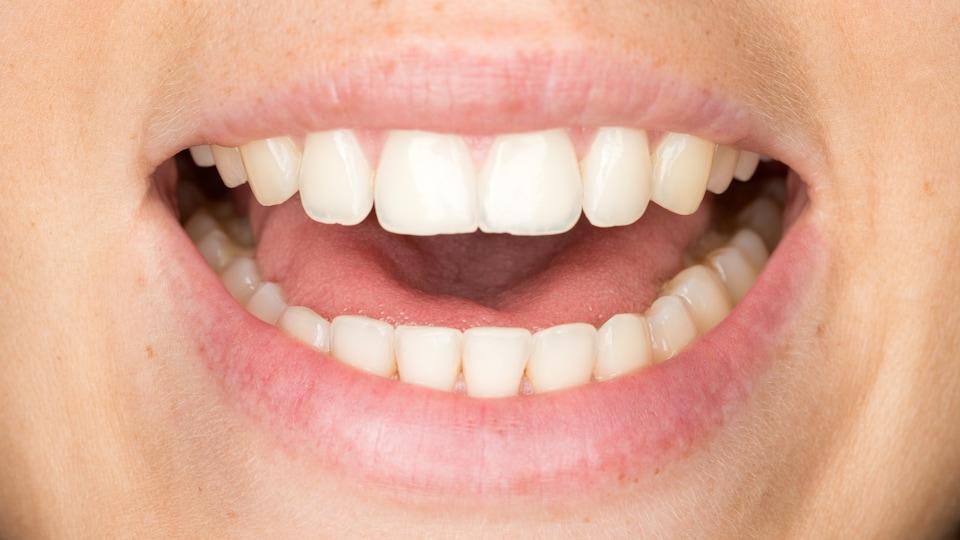 Une femme ouvre la bouche.