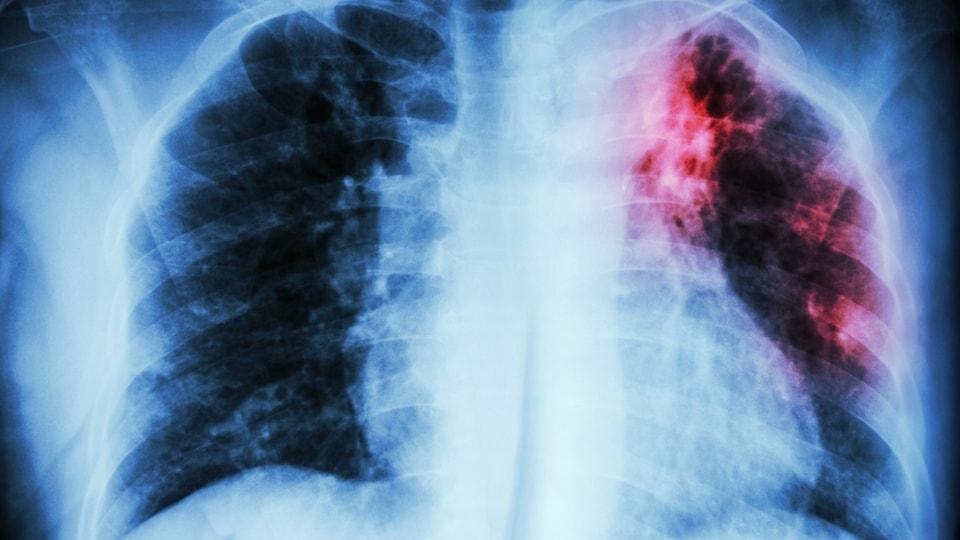 Radiographie de poumons d'une personne atteinte de tuberculose
