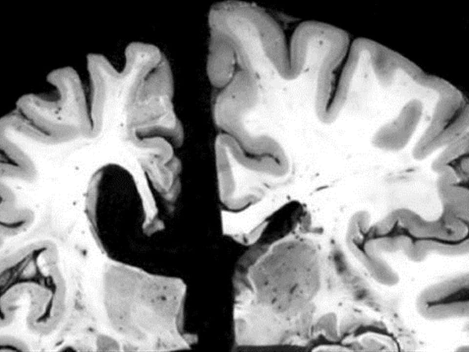 À gauche, le cerveau d'une personne de 70 ans atteinte de l'alzheimer. À droite, le cerveau d'une personne de 70 ans qui ne présente aucune trace de la maladie.