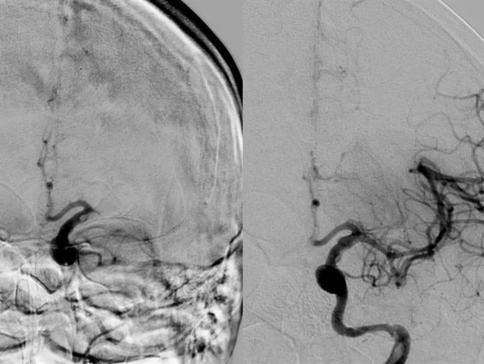 Une image détaillée du cerveau