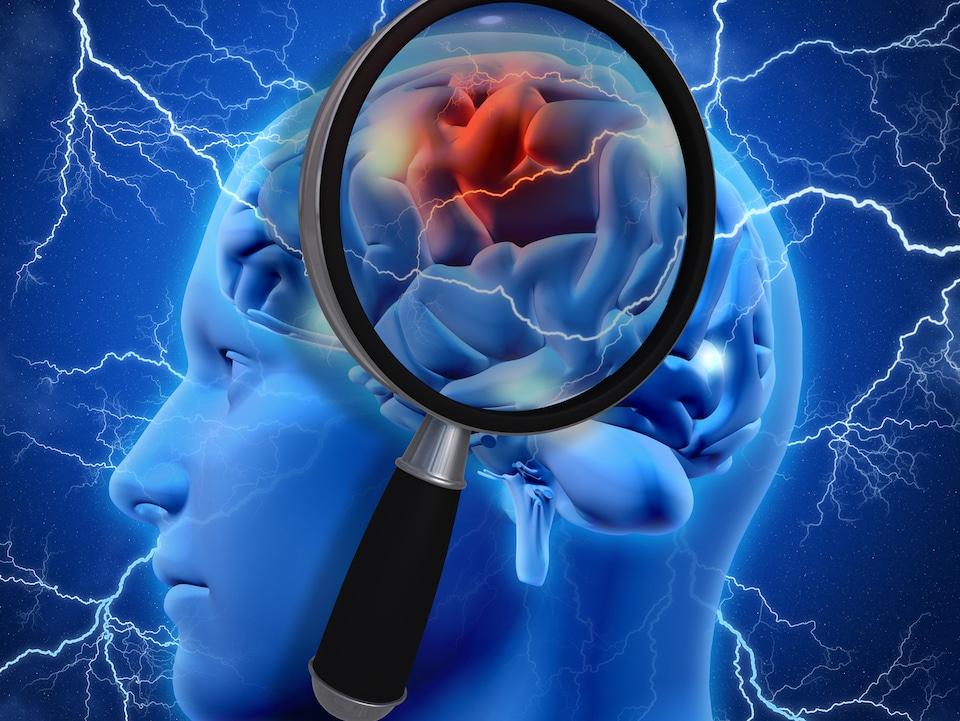 Le cerveau humain.