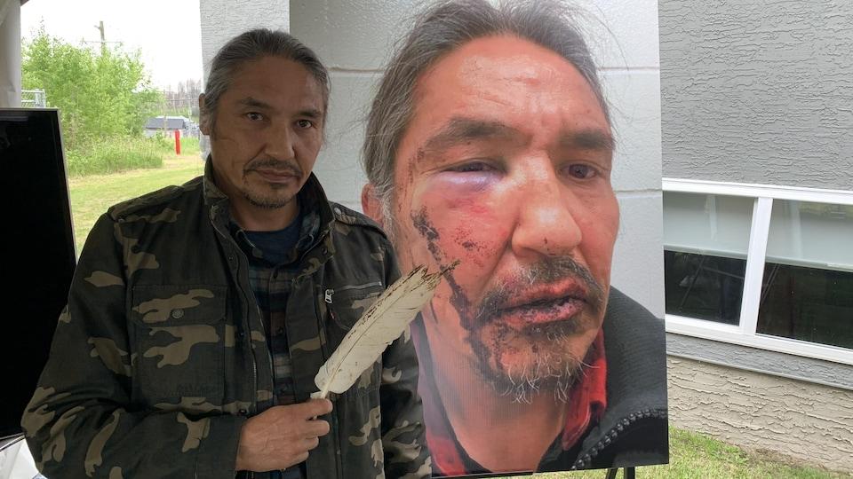 Le chef Allan Adam se tient à côté une photo de son visage tuméfié. Il tient une plume dans sa main.