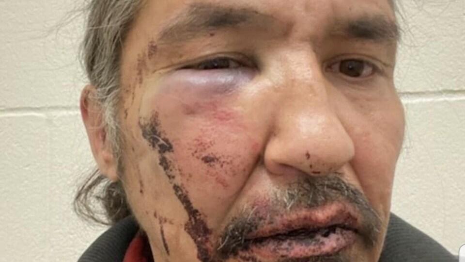 Le visage du chef est gonflé et a du sang séché. Son oeil droit est à moitié ouvert et tuméfié.