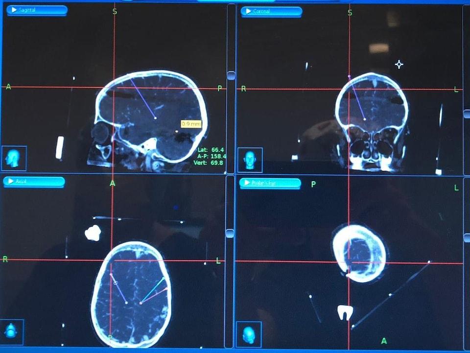 Radiographie des électrodes dans le cerveau d'Andi Dreher