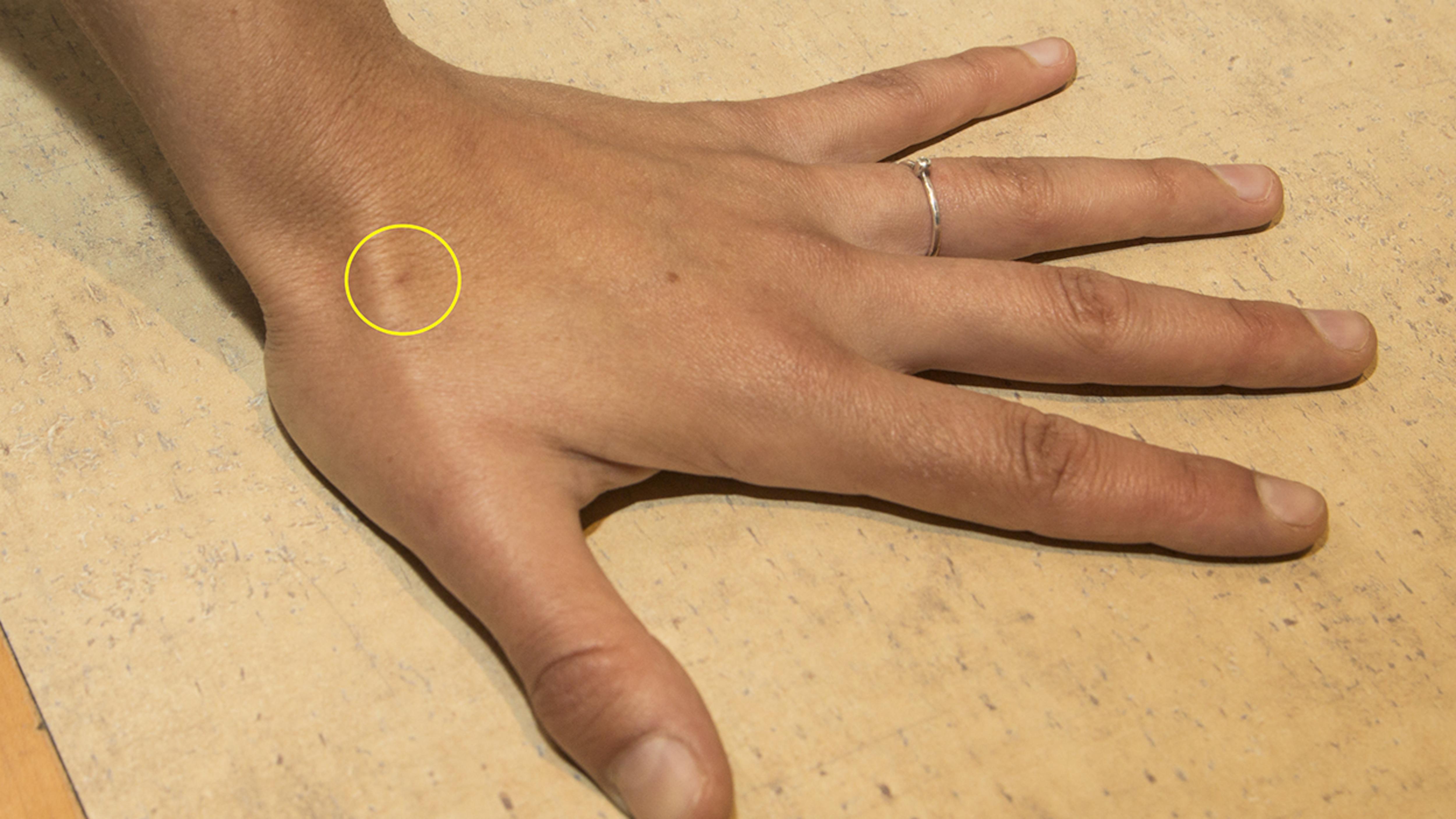 La main de Dominique Leclerc. Le cercle jaune indique la zone sous laquelle une micropuce a été insérée par injection.